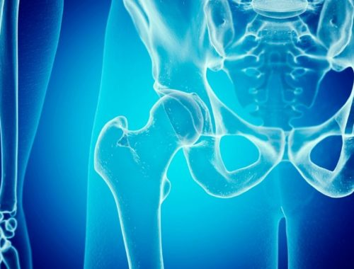 A hip xray that probably isn't with dysplasia but gives you the idea